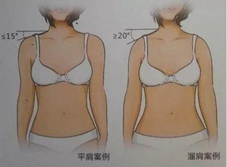 女星争相露肩,杨颖、刘诗诗竟把刘亦菲秒成渣?-第20张图片